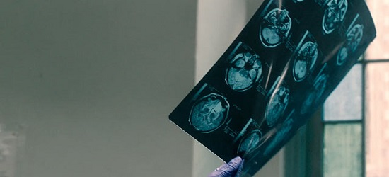 Concussion - Banner Main 3